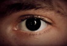 yeux-iris-aniridie